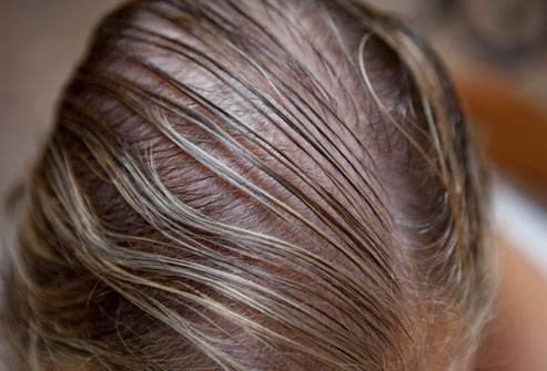 Да, можно сказать, судьба у волос такая: расти и выпадать (имеются в виду стадии анагена (периода роста), катагена